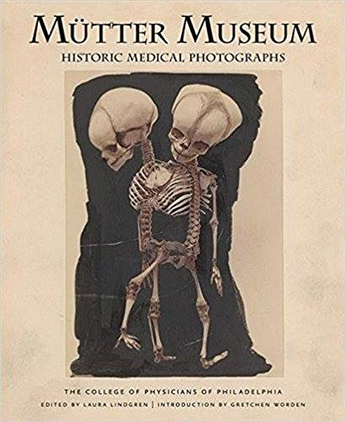 Mutter Museum: Historic Medical Photographs