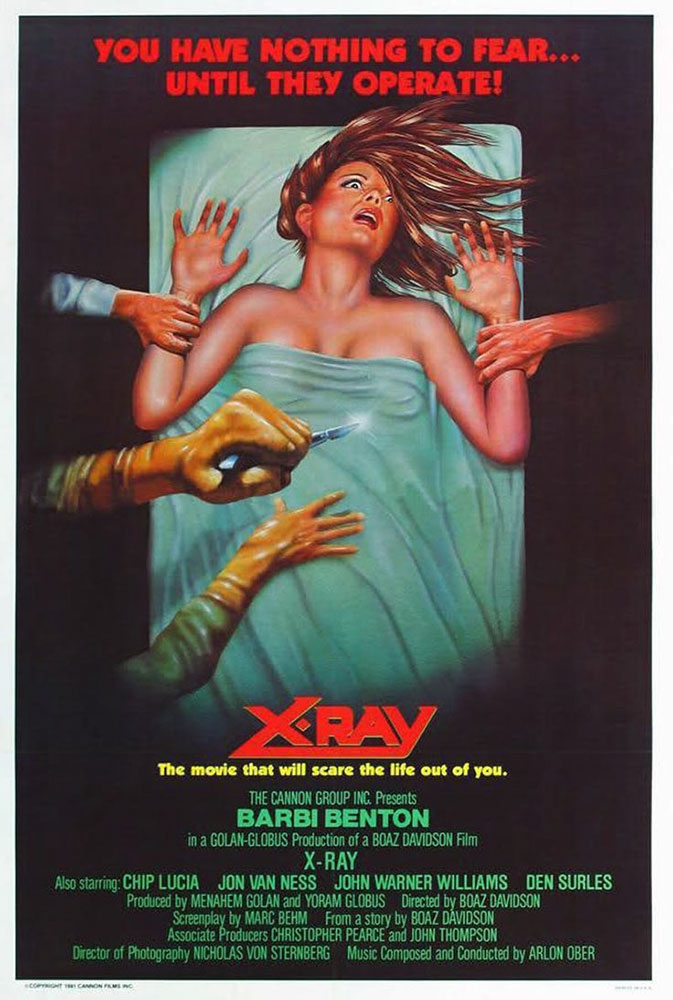 Severed Cinema review of X-Ray (aka Hospital Massacre) from Cannon Films and Shout! Factory